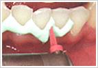 歯間を機械的に清掃