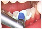 歯間を研磨する